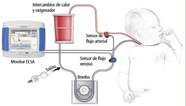 Elsa Monitor para ECMO de Transonic